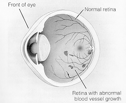 In proliferative retinopathy, new, fragile blood vessels grow on the surface of the retina