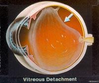 The vitreous