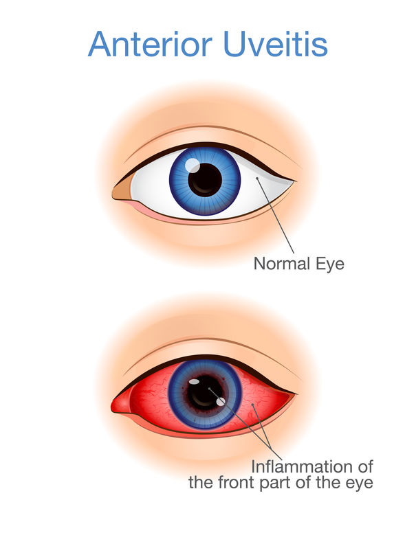 Uveitis vs Normal Eye